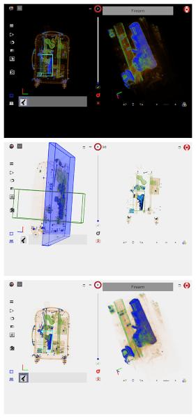 Renful Simfox Computed Tomography